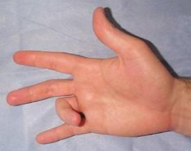 гигрома фото на пальце